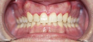 SEMANA-DESPUES-DE-GINGIVECTOMIA-1
